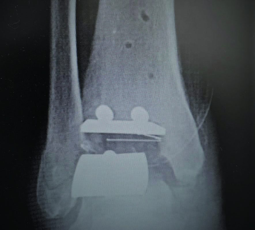 Addressing Impingement Issues After Total Ankle Replacement
