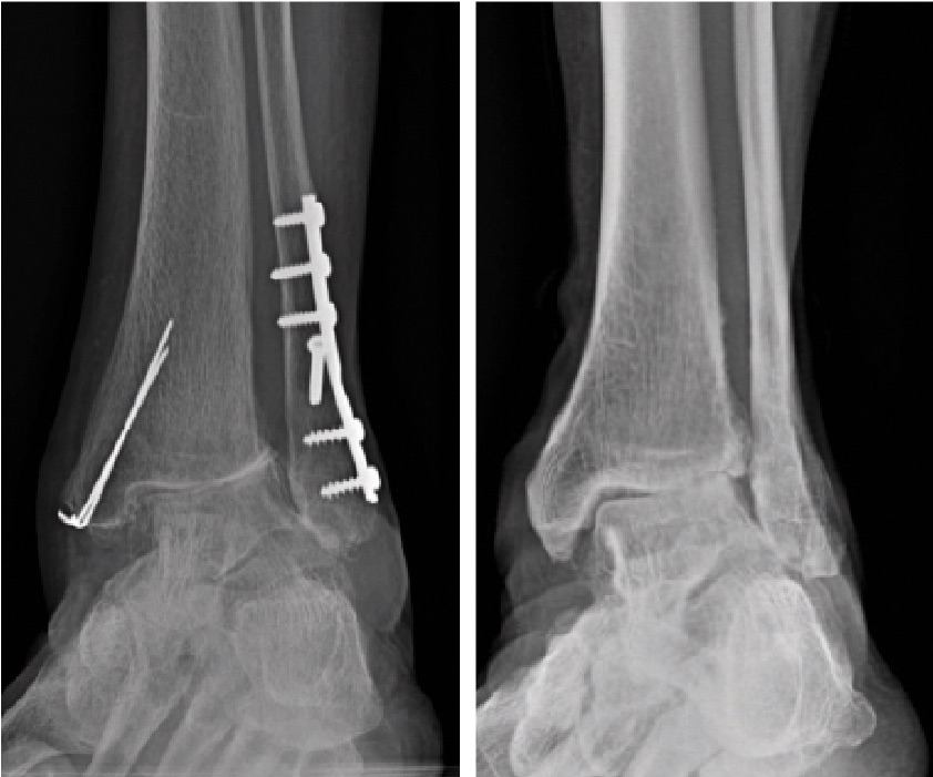 Is Total Ankle Replacement Appropriate In Cases Of Severe Coronal Deformity?