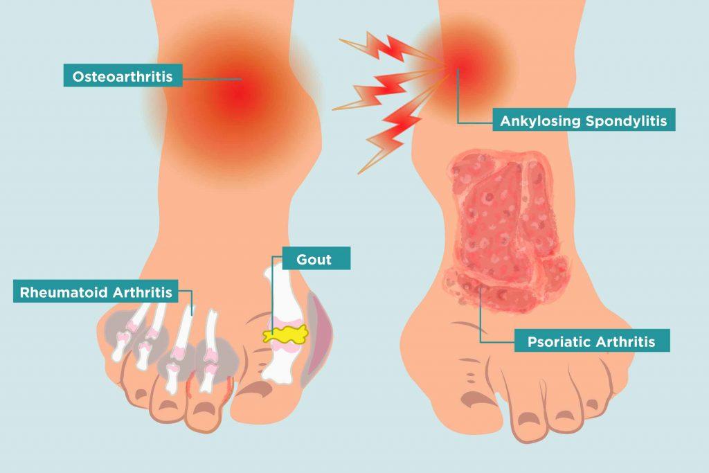 Arthritis Feet