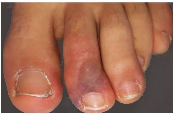 covid toe
