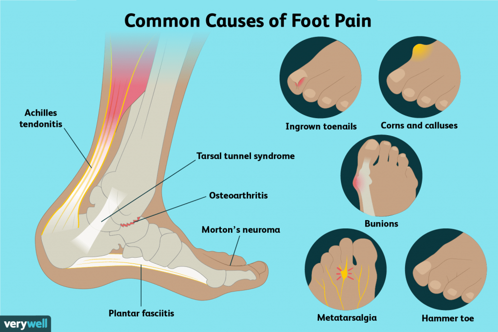 common causes of feet pain
