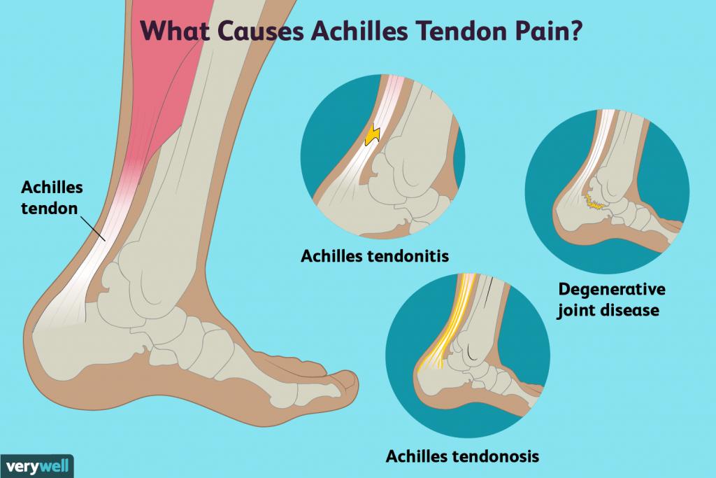 achilles-tendon-pain-orsaker-behandling-och-när-man-ska-se-a-5251