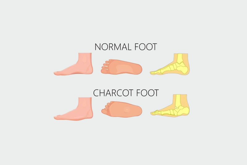 Charcot Foot