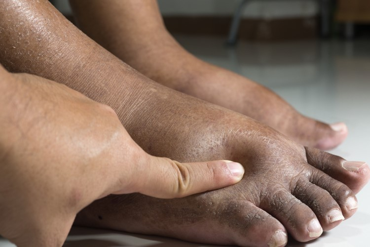 what is diabetic foot management