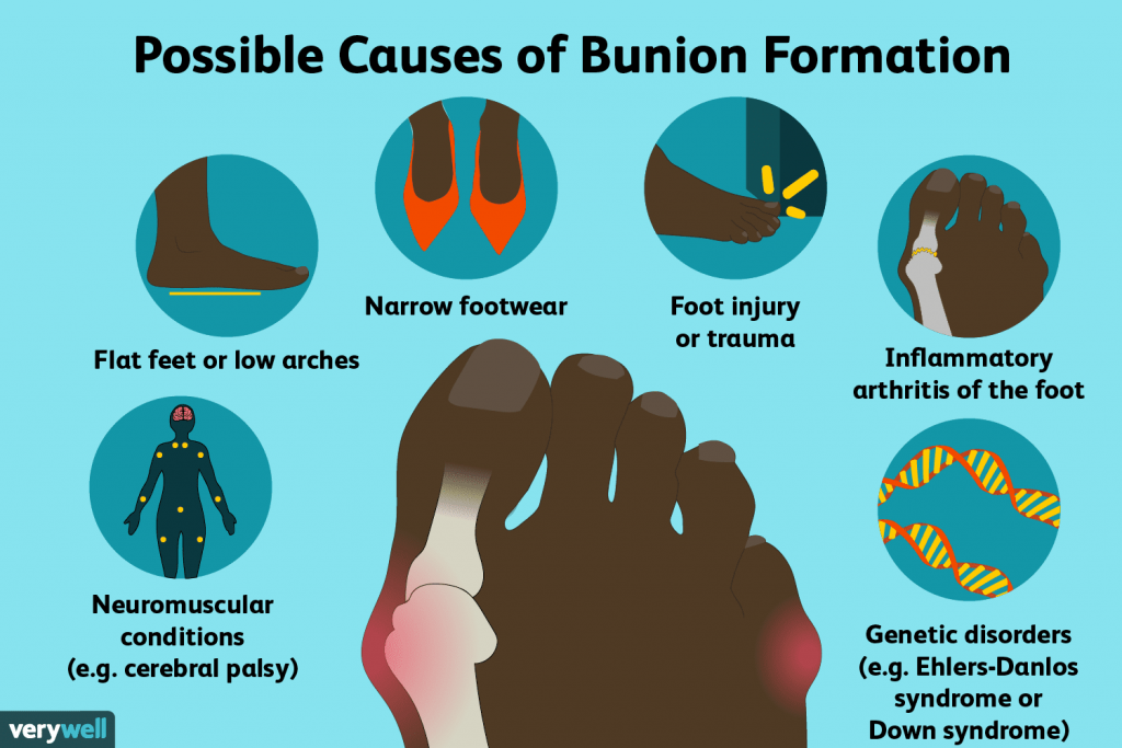 Foot Ankle Surgery and Some Causes